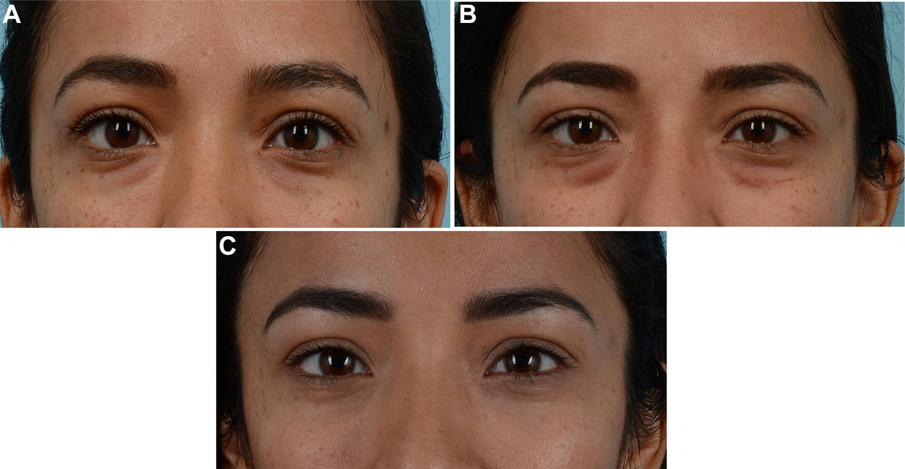 Managing Periocular Filler-Related Syndrome Prior to Lower