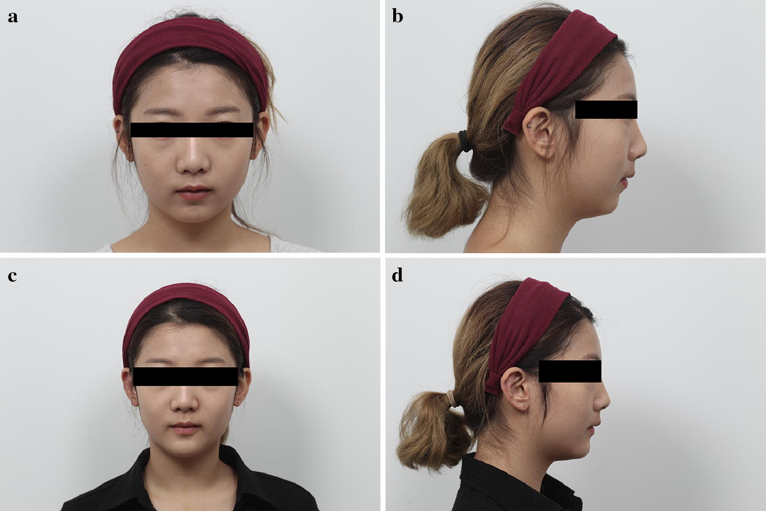 Effects of Hat-Shaped Mortised Genioplasty with Genioglossus