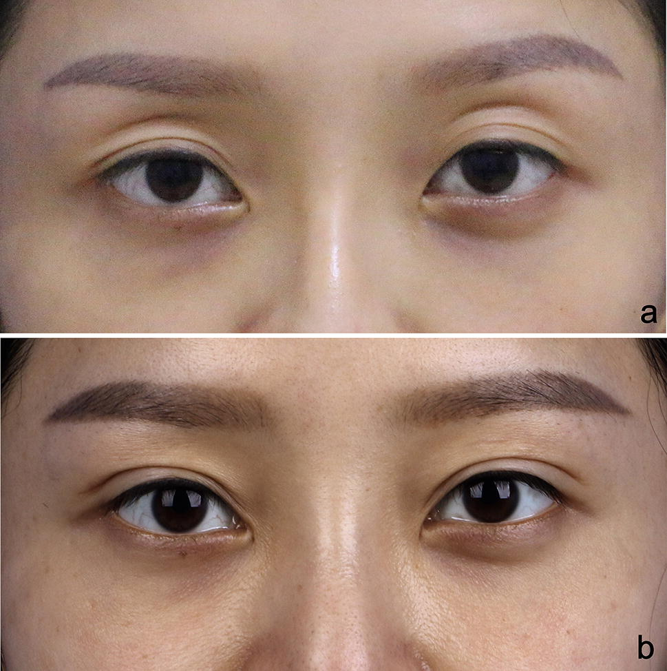 Repair Techniques for Failed Double-Eyelids Involving Restoration of