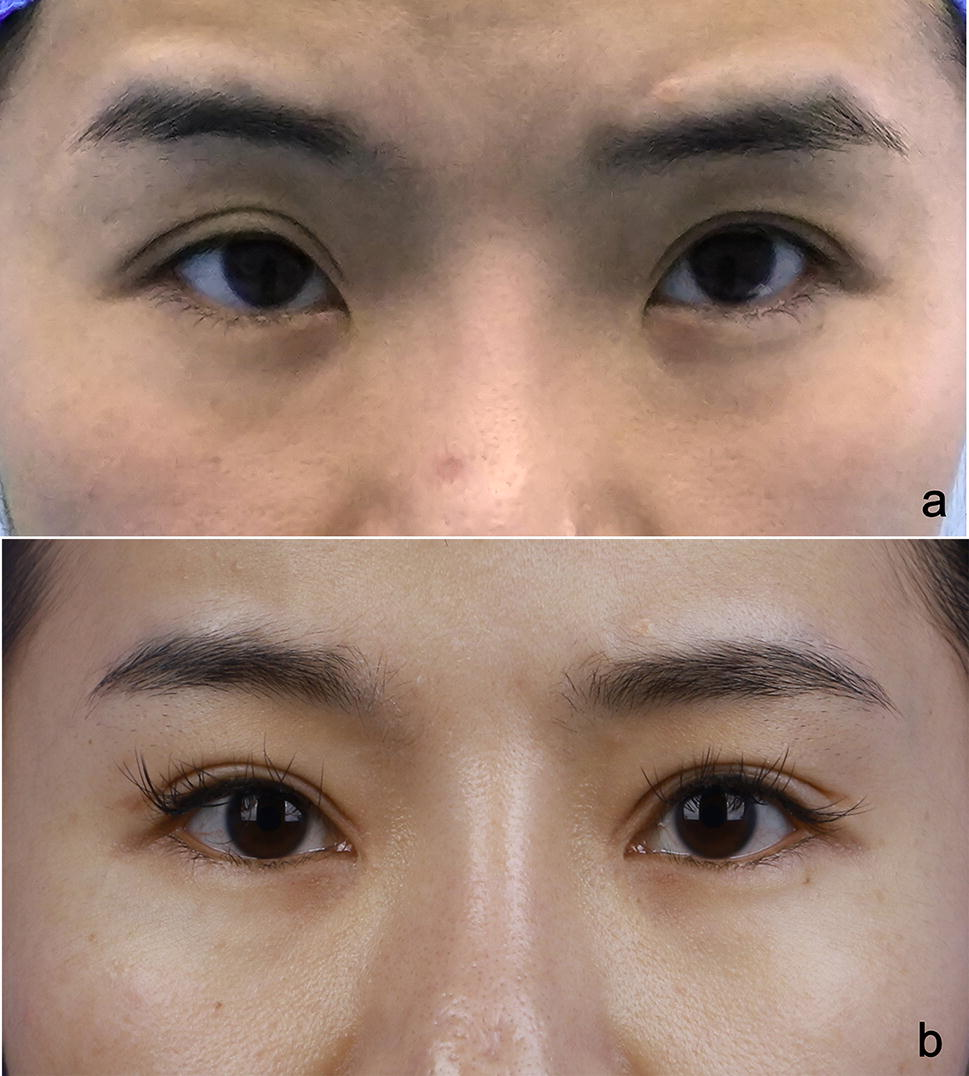Repair Techniques for Failed Double-Eyelids Involving