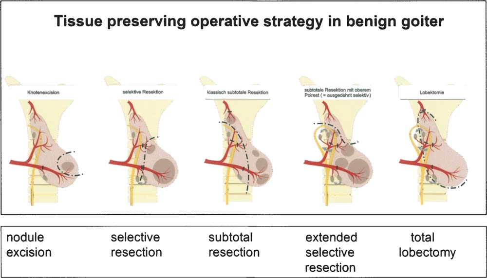 Differentiated Operative Strategy in Minimally invasive, Video ...