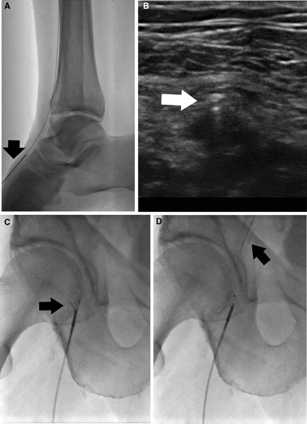Percutaneous Femoropopliteal Recanalization Using a