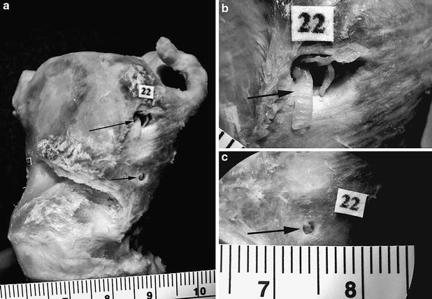 The incidence of the foramen thyroideum in Turkish population ...