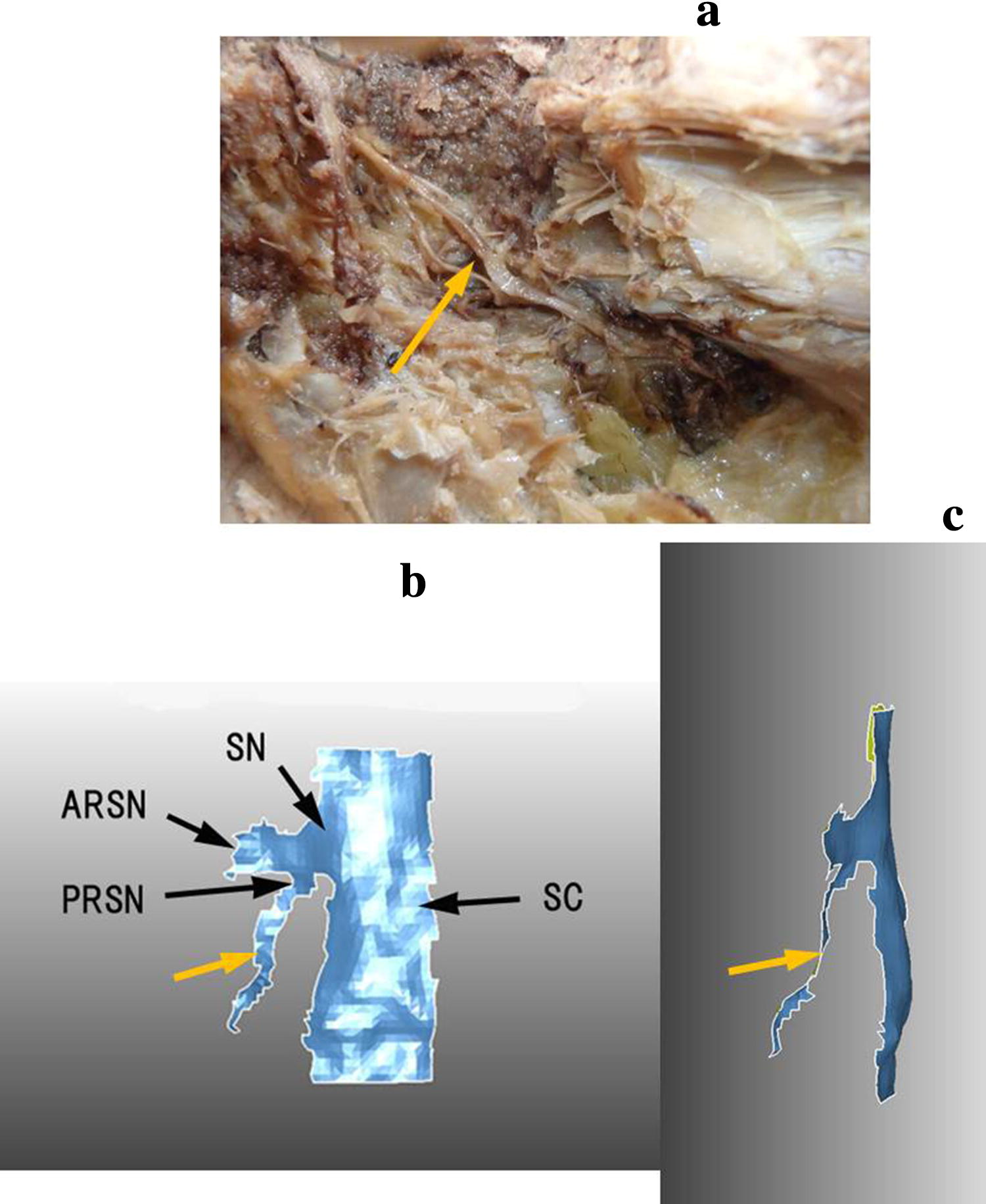 Third primary branch of the posterior ramus of the spinal