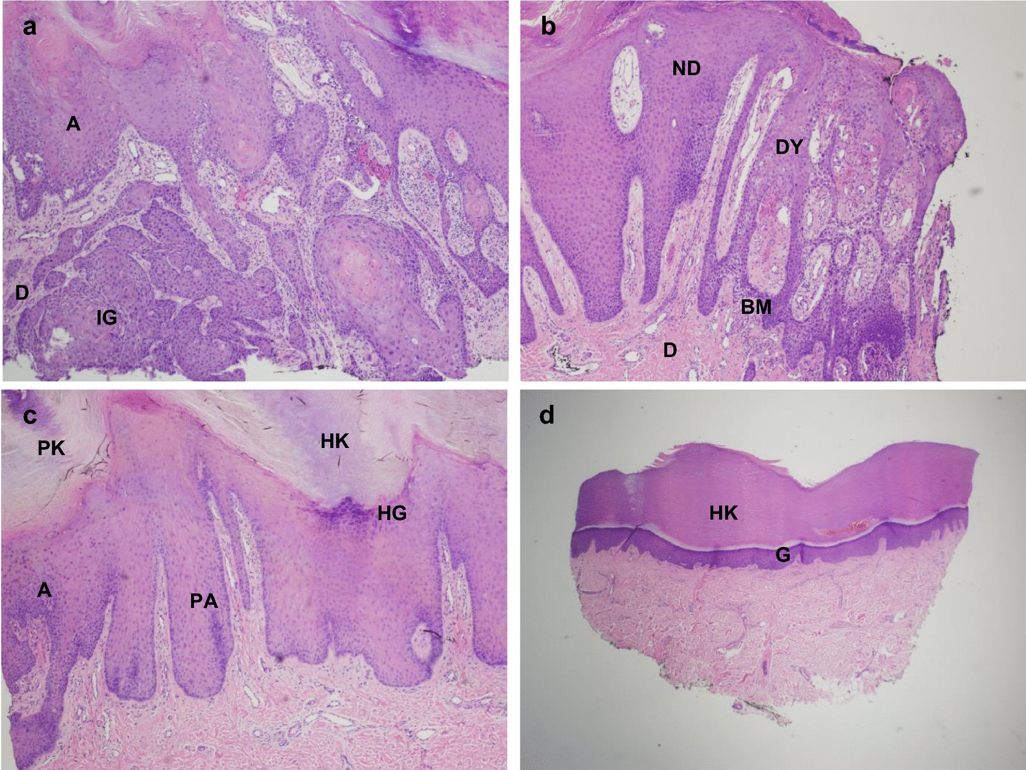 Development of cutaneous squamous cell carcinoma after