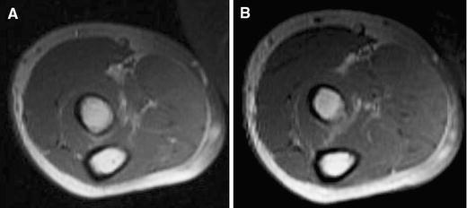Usefulness Of Magnetic Resonance Imaging In Eosinophilic Fasciitis