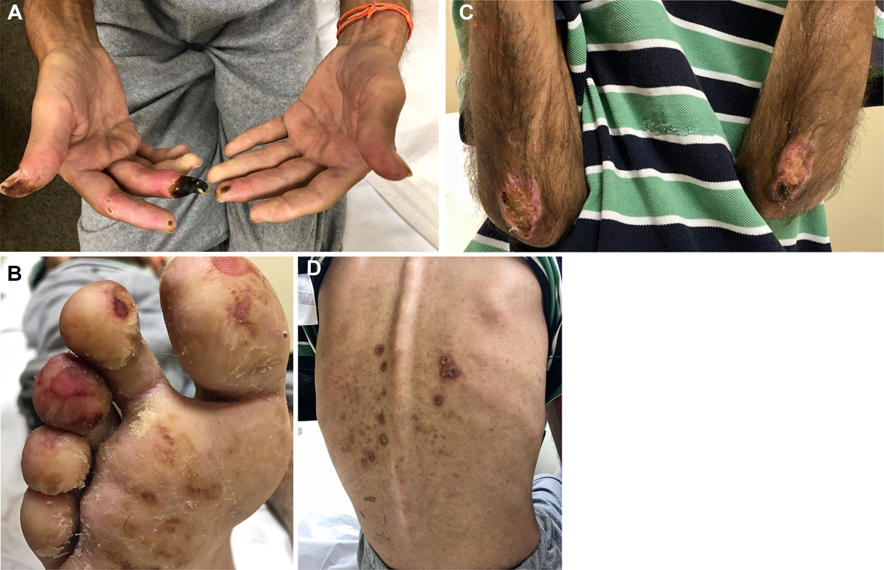 Systemic sclerosis induced by the use of cocaine: is there