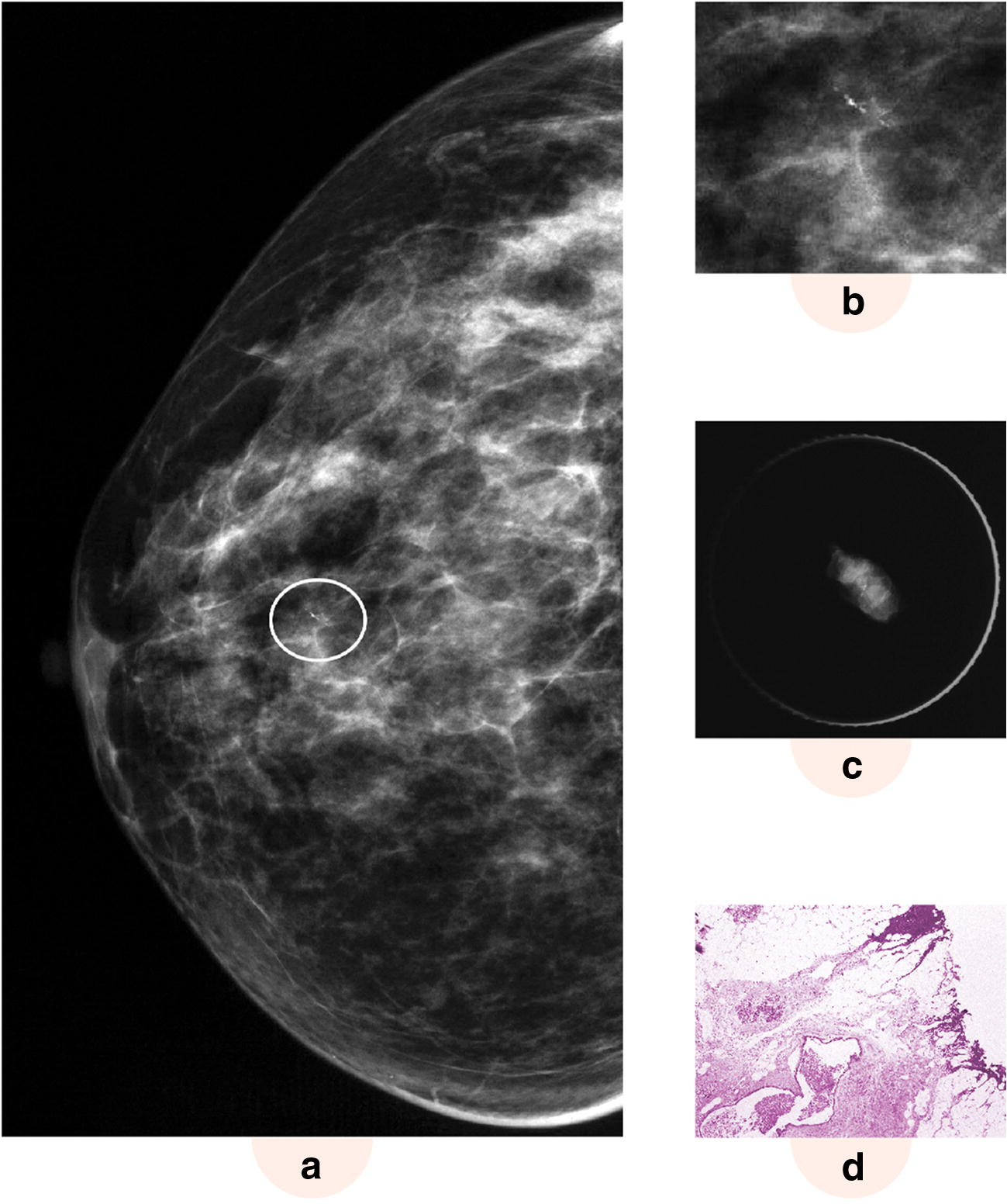 Role of one-pass breast lesion excision system in complete excision