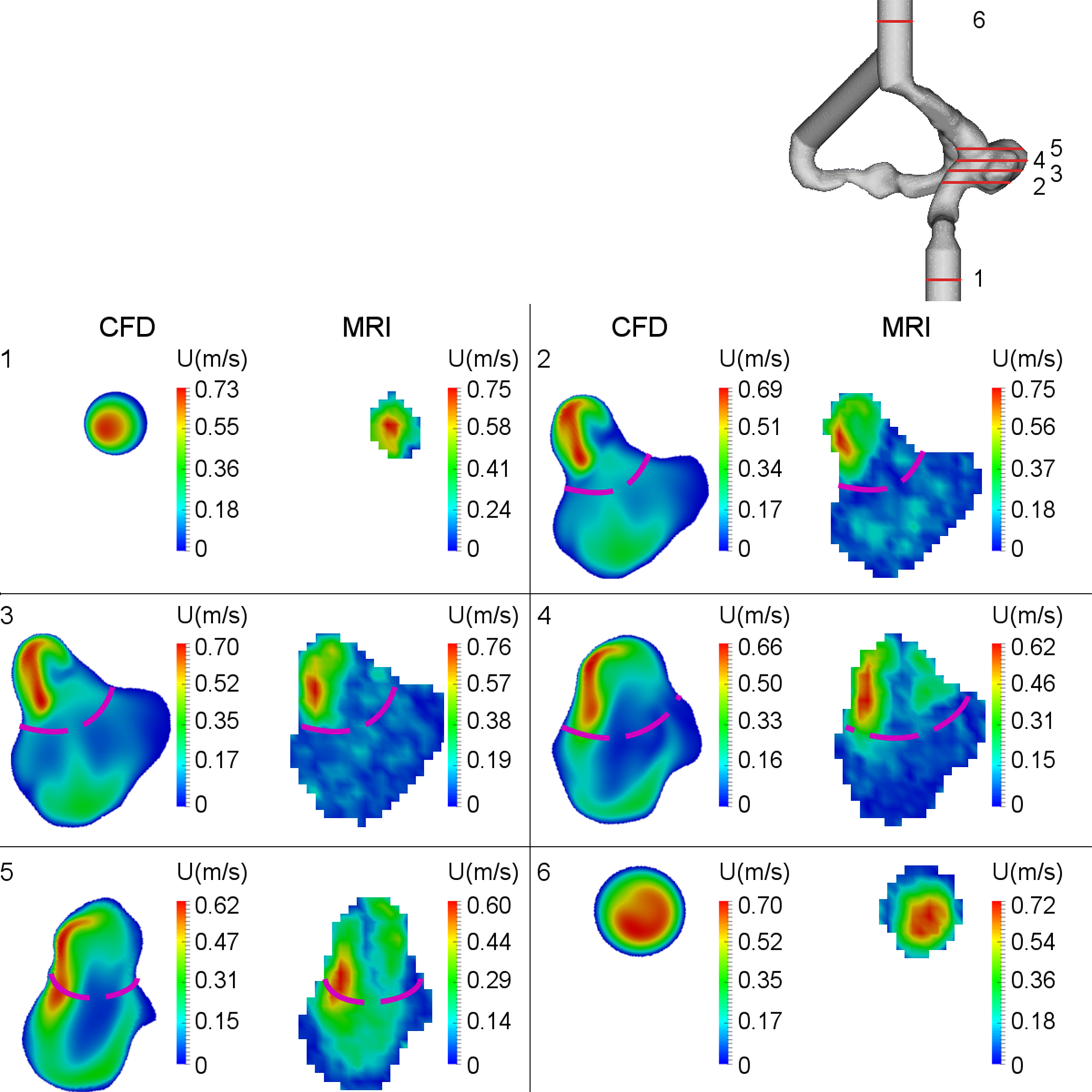 CFD and MRI studies of hemodynamic changes after flow