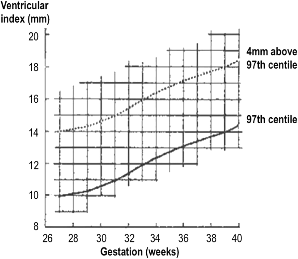 Intraventricular hemorrhage and posthemorrhagic