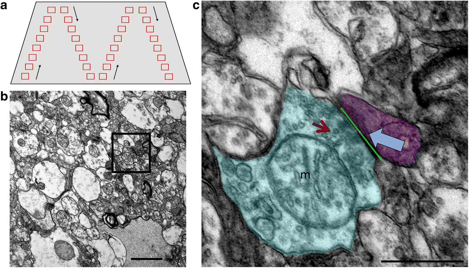 Region-specific depletion of synaptic mitochondria in the brains of ...