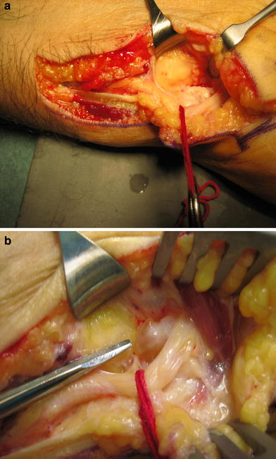 Compression Of The Deep Branch Of The Ulnar Nerve In Guyon