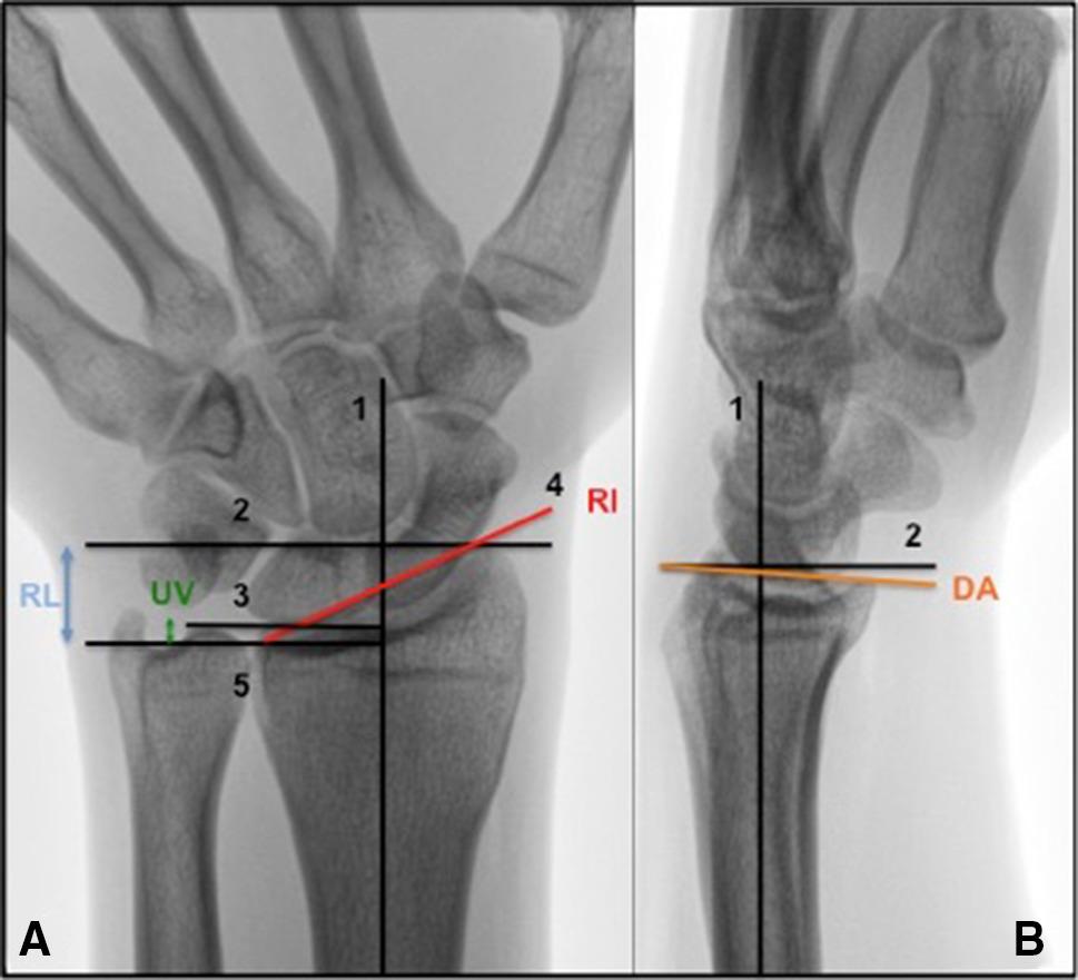 Of Posttraumatic Arthritis Following