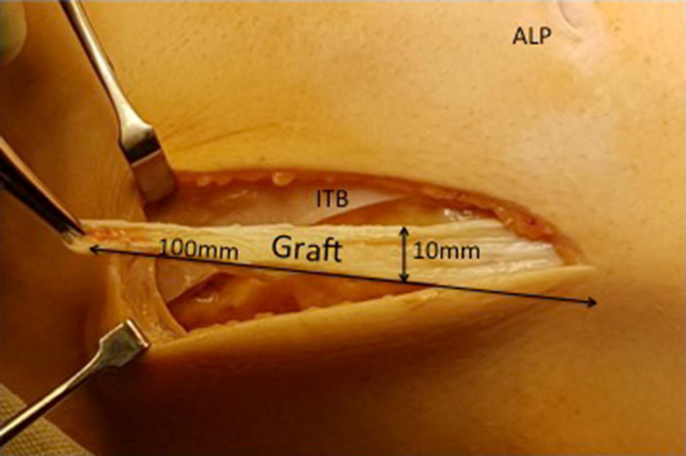 Lateral extra-articular tenodesis with ACL reconstruction