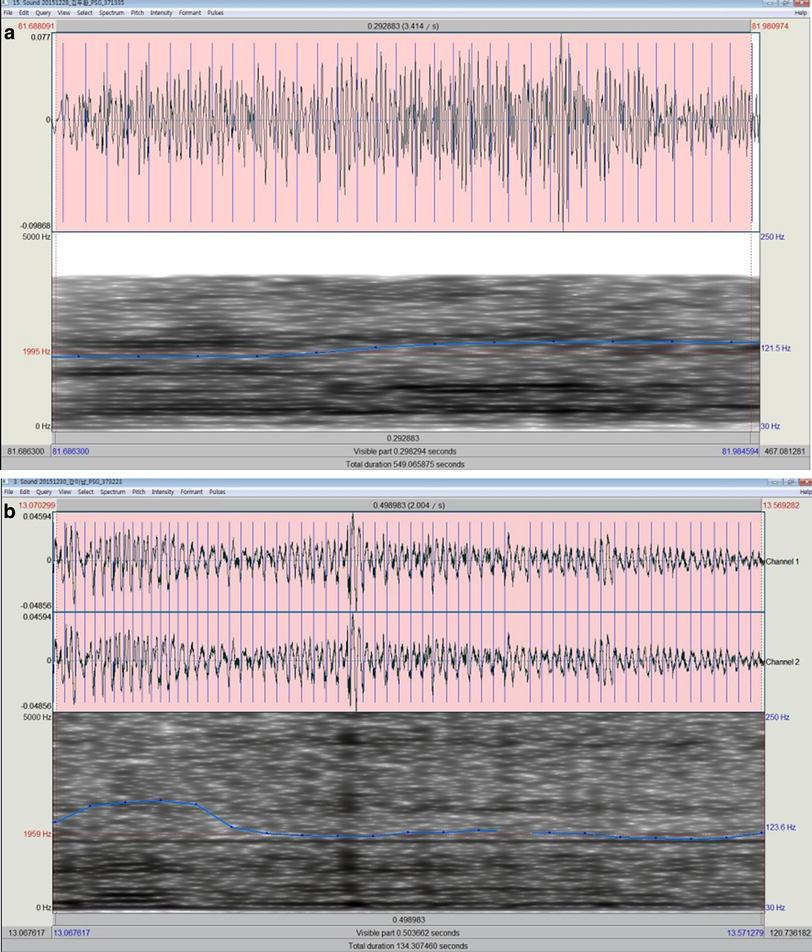 Acoustic analysis of snoring sounds recorded with a