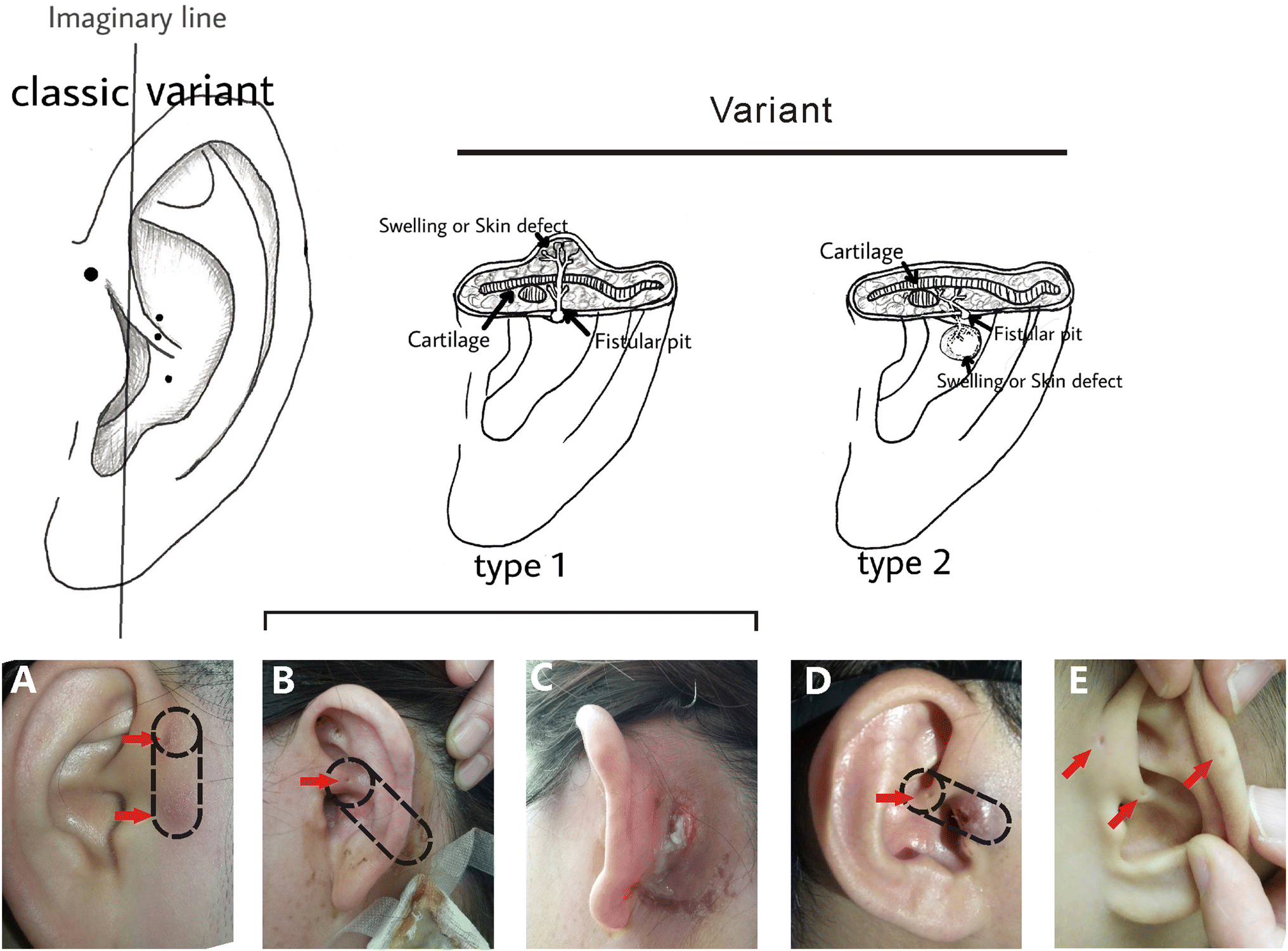 The diagnosis and treatment of a variant type of auricular sinus
