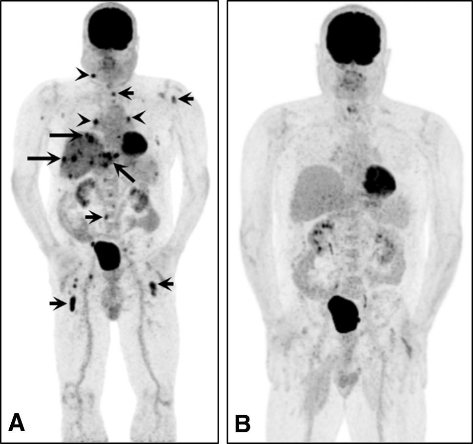 Current concepts in advanced sinonasal mucosal melanoma: a