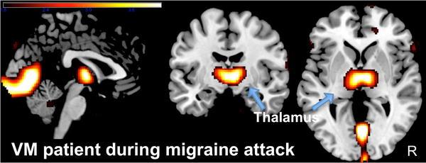 Vestibular migraine: the most frequent entity of episodic