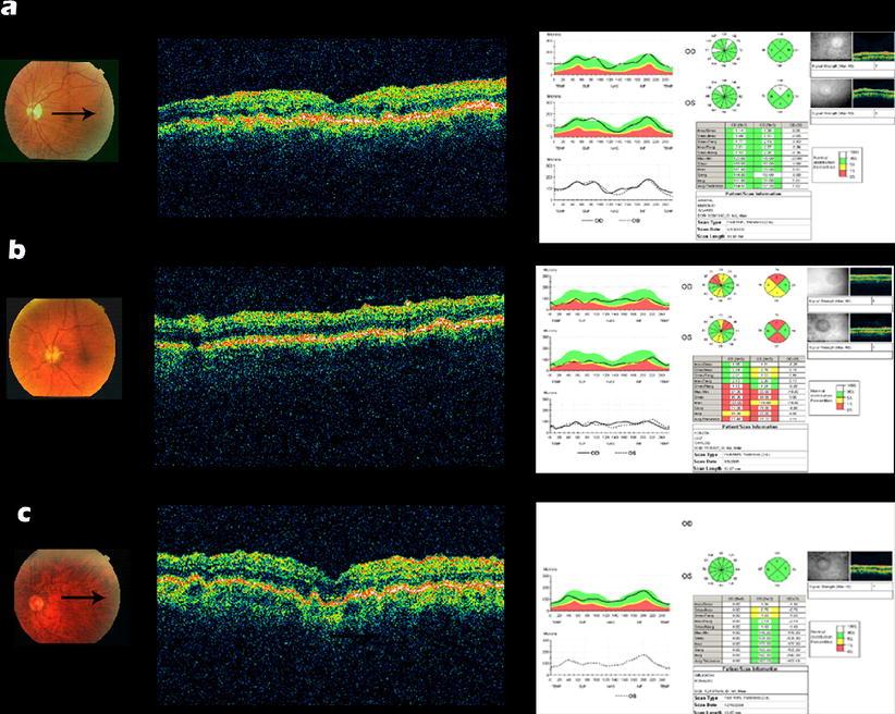 Fig 2 Optic Coherent Tomography Identified Choroidal Folds