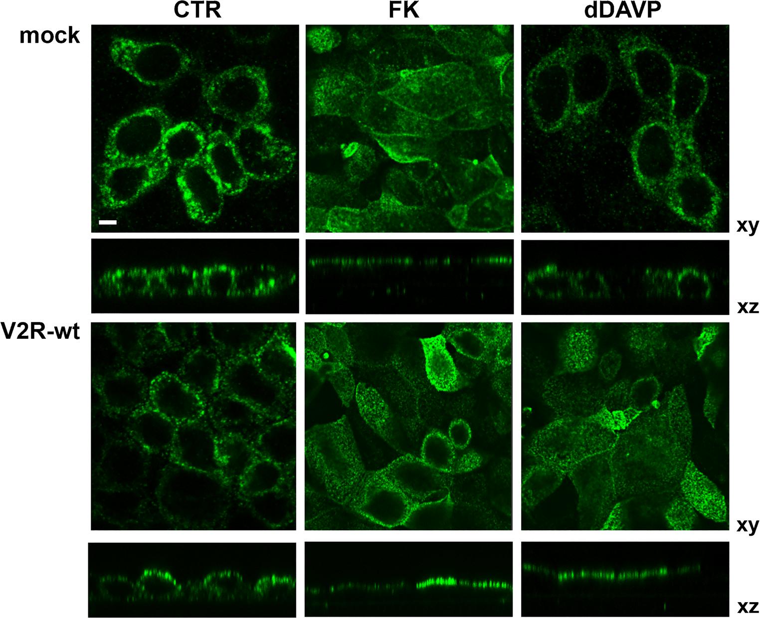 Gain-of-function mutations of the V2 vasopressin receptor in