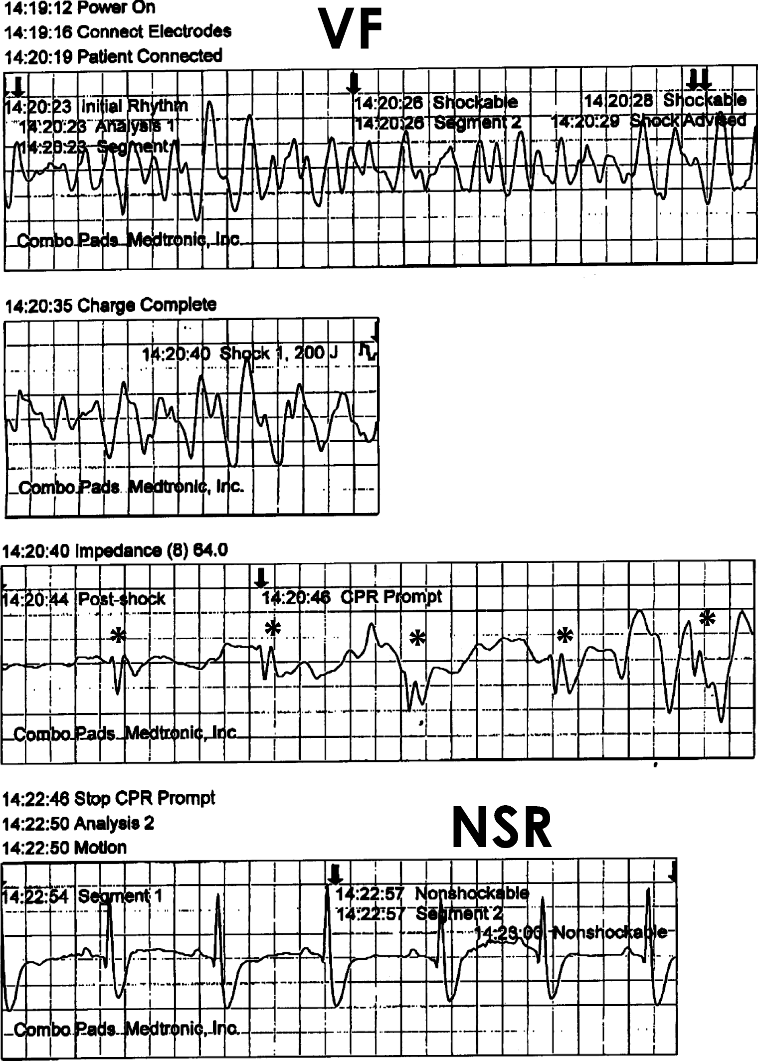 Significance of automated external defibrillator in identifying