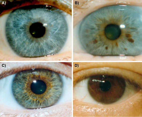 Blue eye color in humans may be caused by a perfectly ...
