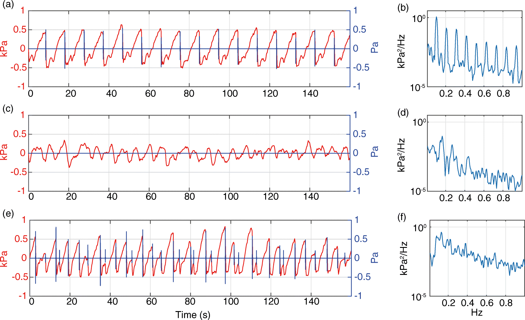 Sawtooth wave-like pressure changes in a syrup eruption experiment