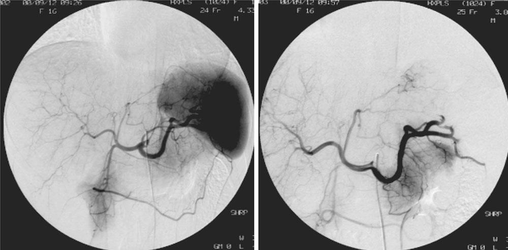 Splenic Artery Embolization Before Laparoscopic Splenectomy In
