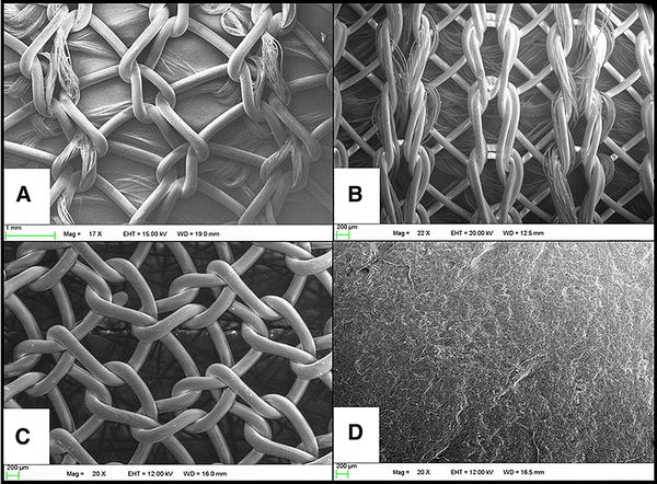 Evaluation of a fully absorbable poly-4-hydroxybutyrate/absorbable