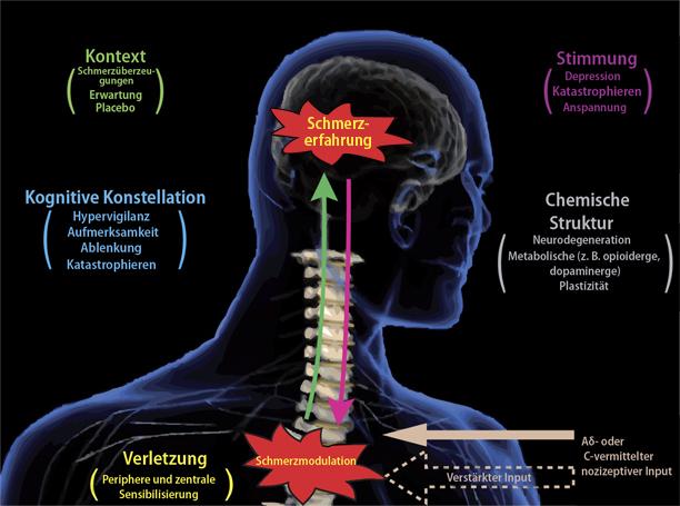Funktionelle Bildgebung in der Schmerzforschung | SpringerLink
