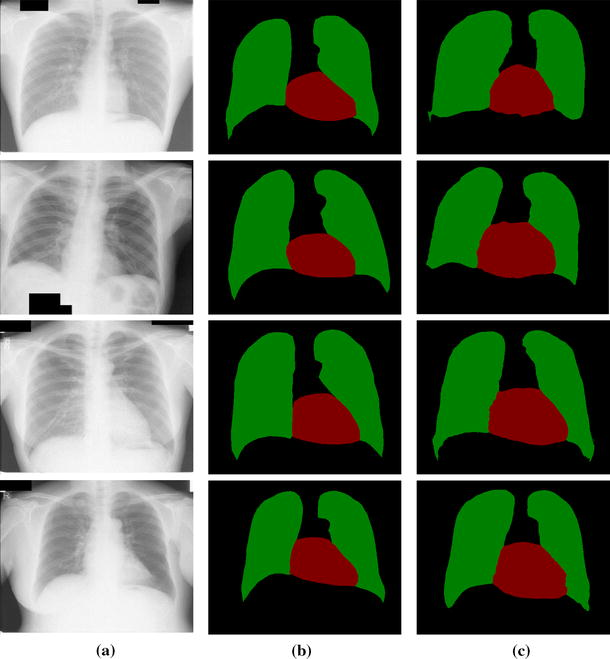 Medical image semantic segmentation based on deep learning