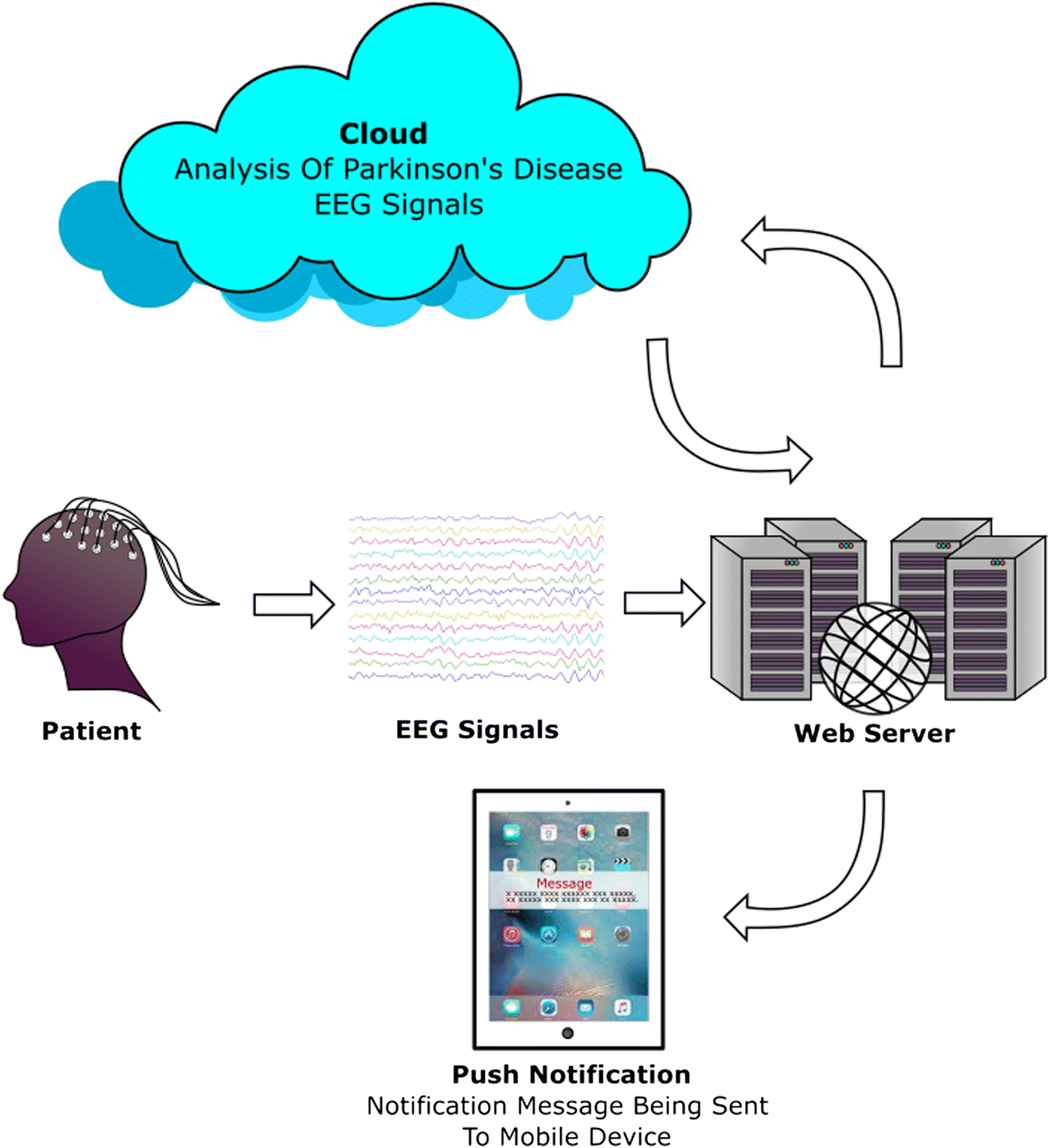 A deep learning approach for Parkinson's disease diagnosis