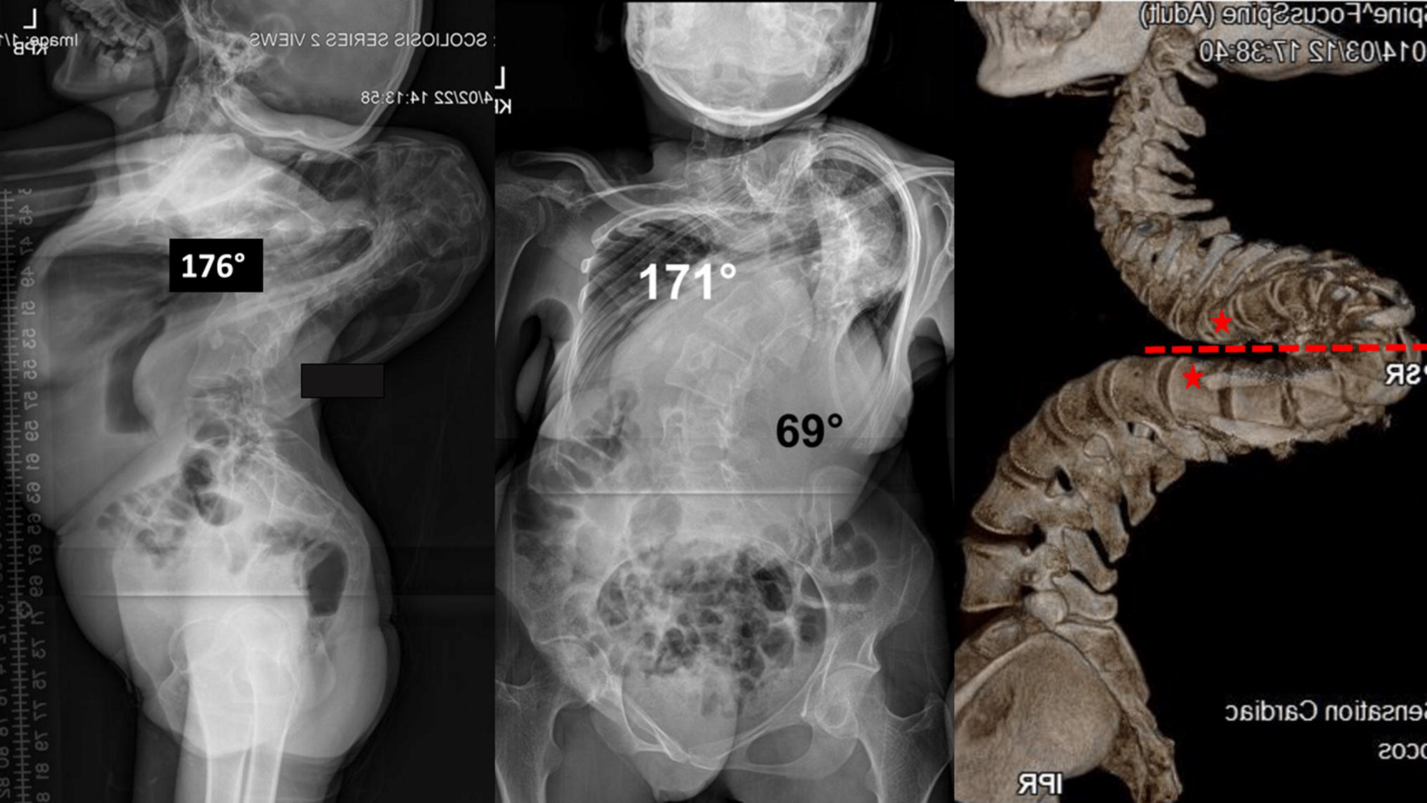 A novel radiographic classification of severe spinal