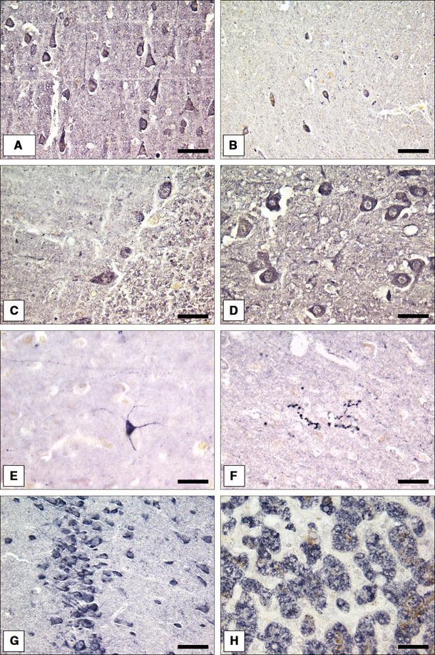 possib le sources and functions of l homoarginine in the brain