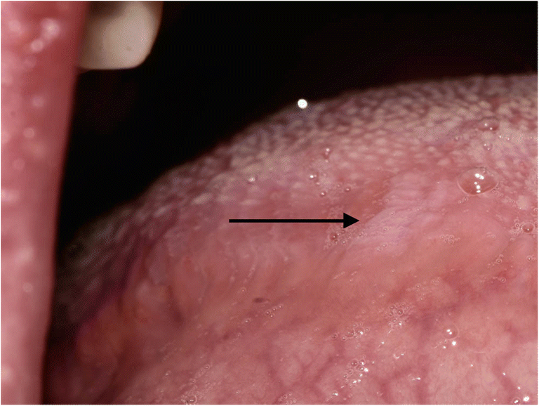 Oral hairy leukoplakia in healthy immunocompetent patients