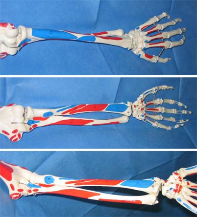 Korrekturosteotomien am Unterarm | SpringerLink