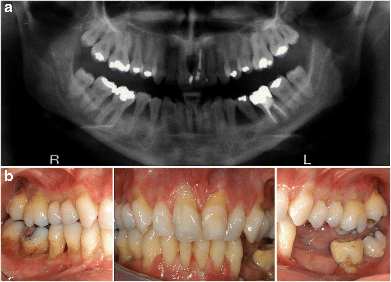 Periodontal Ehlers–Danlos syndrome is associated with