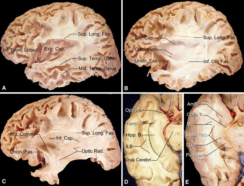 Microsurgical and tractographic anatomical study of insular and ...