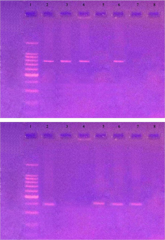 akaratlan fogyás sclerosis multiplex