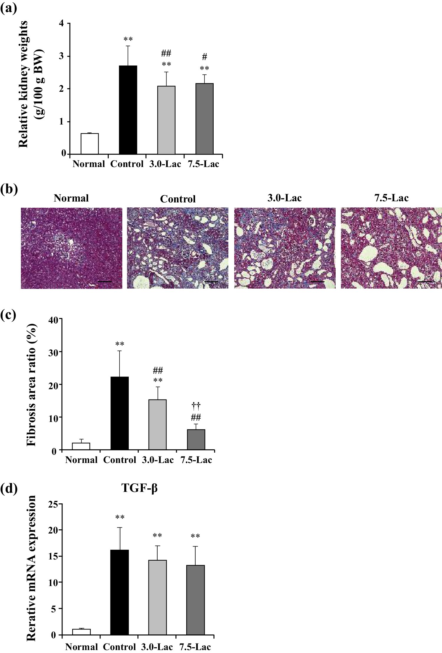 Effects of lactulose on renal function and gut microbiota in