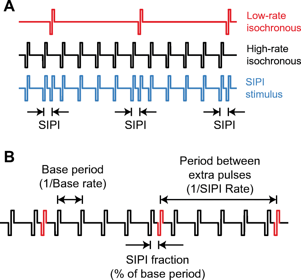 Improved Neural Coding Of Itd With Bilateral Cochlear Implants By The Circuit Expects Pulses Active Low At Intervals Less Than Its Open Image In New Window