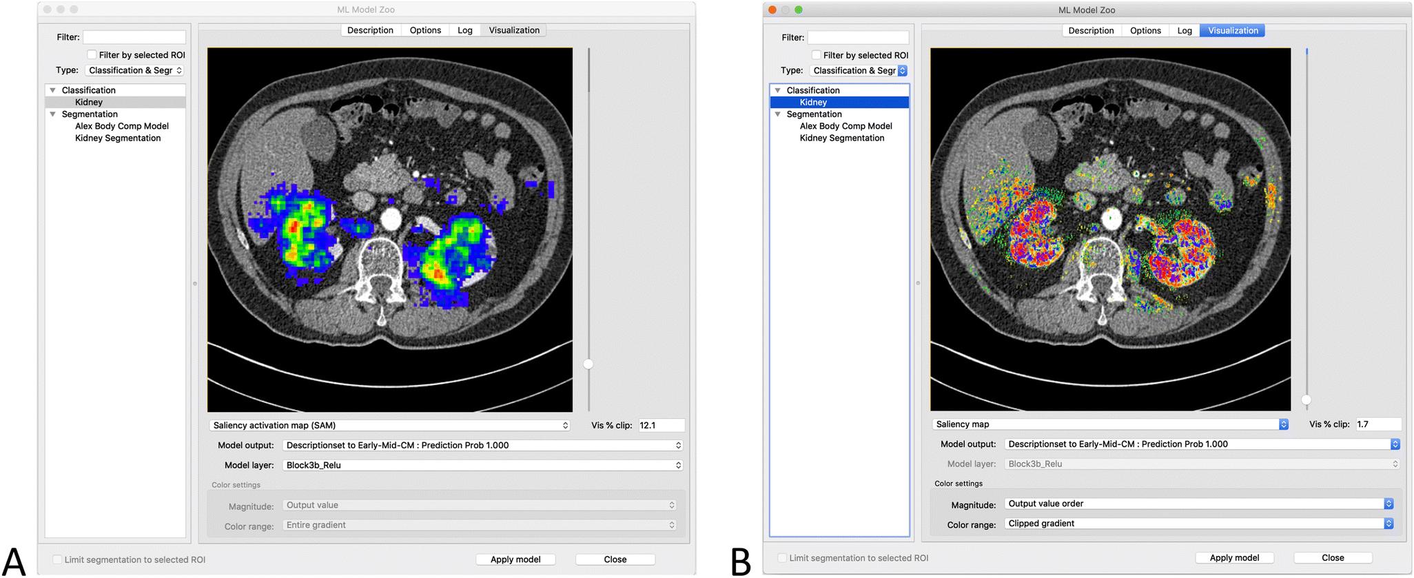 RIL-Contour: a Medical Imaging Dataset Annotation Tool for