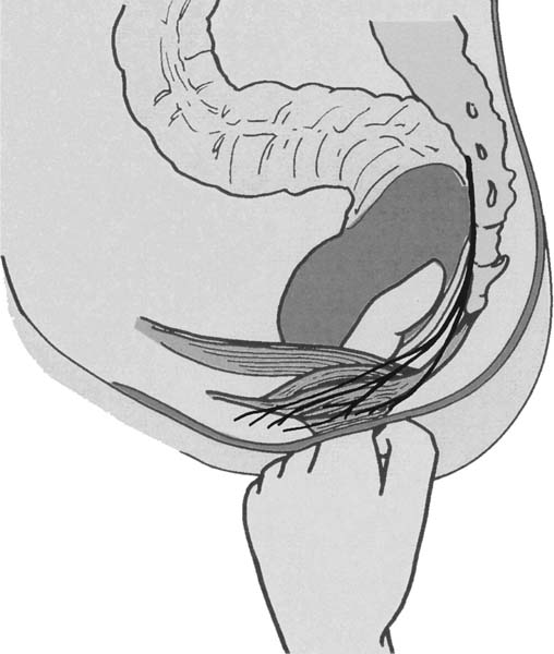 Proctalgia Fugax: Caused By Pudendal Neuropathy?   SpringerLink