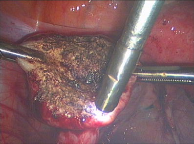 oral-sex-after-endometriosis-laparoscopic-surgery-squeezing