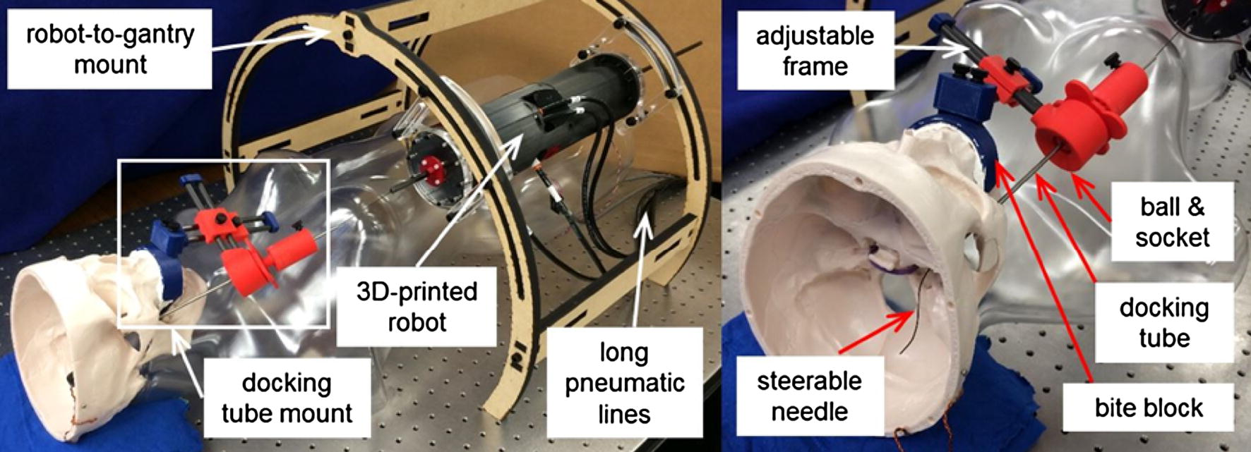 Stereotactic Systems for MRI-Guided Neurosurgeries: A State