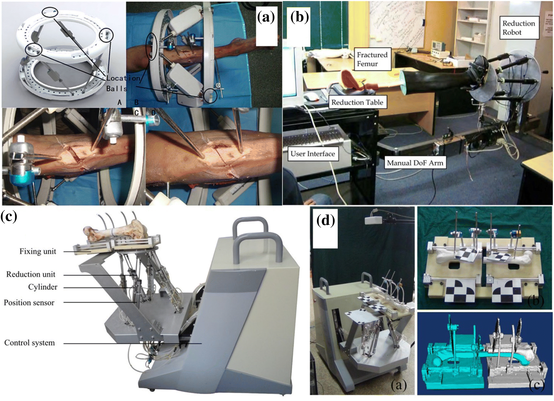 Evolution and Current Applications of Robot-Assisted Fracture