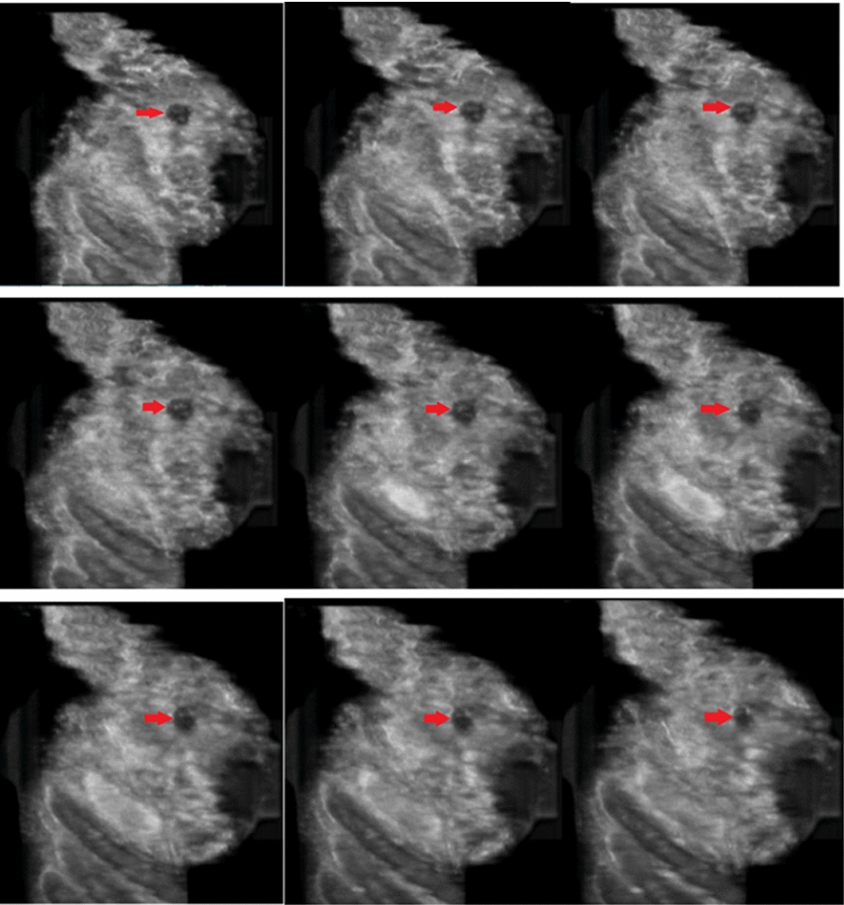 Computer aided detection in automated 3-D breast ultrasound