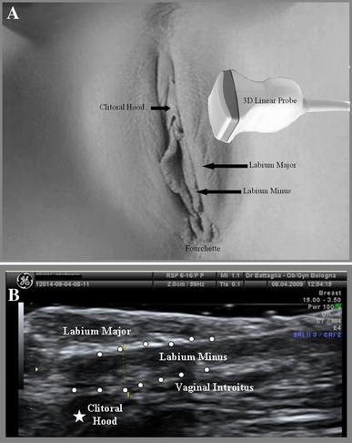 2d And 3d Ultrasound Examination Of Labia Minora