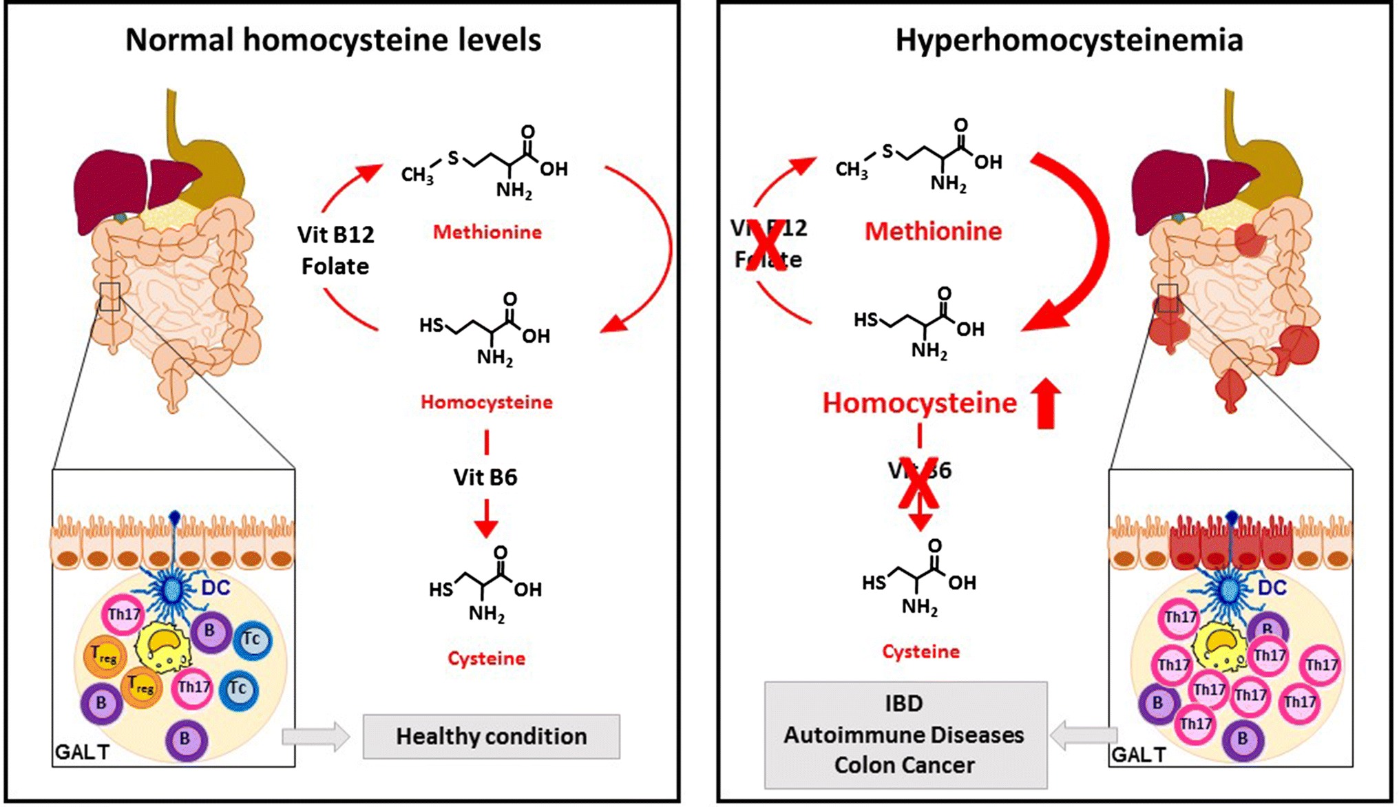 Homocysteine and Folate in Inflammatory Bowel Disease: Can