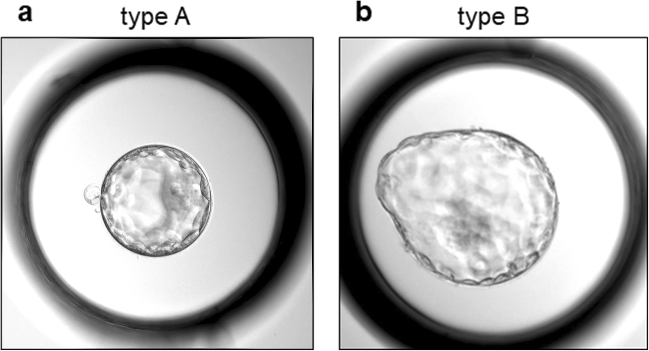 Failure of complete hatching of ICSI-derived human